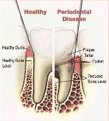 Gum Disease Dentures Alaska
